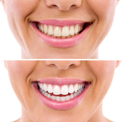 whitening - bleaching treatment ,woman teeth and smile